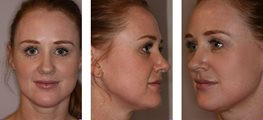 M22™ IPL Photo rejuvenation