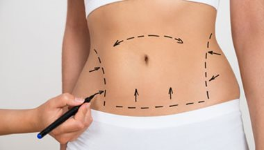 Liposuction & Liposculpture